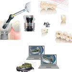 30 ans de prothèse sur implant